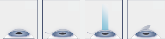 Chart Showing the Steps of LASIK